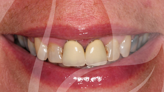 Crown replacements with cosmetic crowns