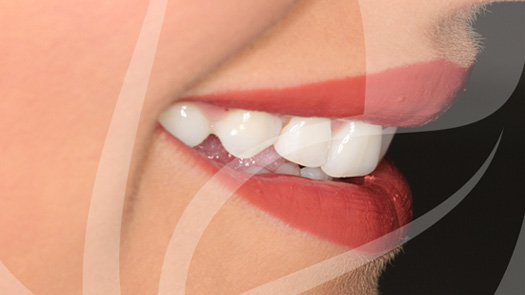 Whitening & cosmetic bonding makeover