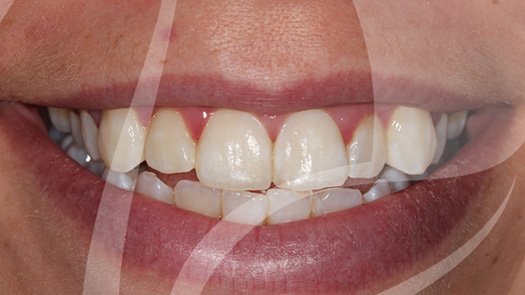 Whitening of severely discoloured teeth